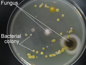 biology agar plates Moltox® minimal glucose agar plates, top agars, salmonella and e coli tester strains, frozen and lyophilized s9, mutazyme™, nadph regenerating systems and positive control chemicals are distributed worldwide.