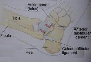 Anterior Talofibular Ligament Repair Surgery